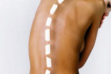 סקוליוזיס – עקמת בעמוד השדרה